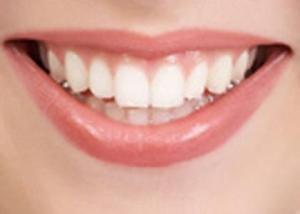 ازاى تبقى اسنانك نظيفه